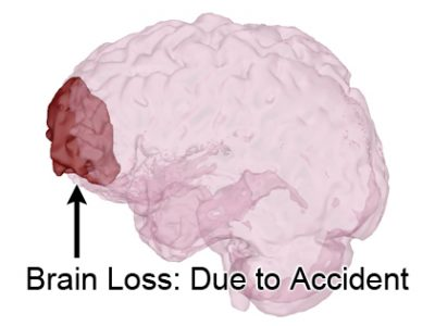 3D View of Brain Loss