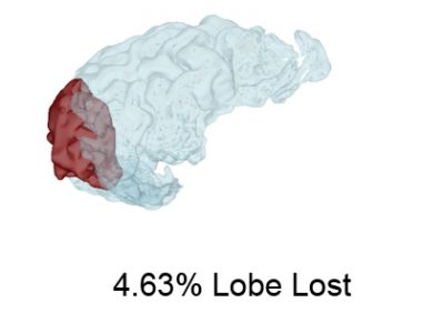3D View of Brain Loss Quantified