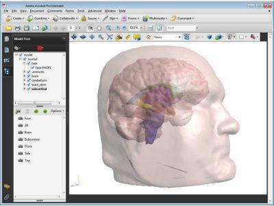 3D PDF - Normal Brain