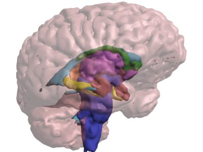 3D PDF - See through brain