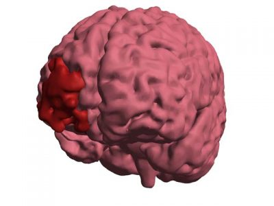 3D PDF - Injured Brain