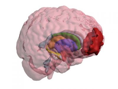3D PDF - Transparent Injured Brain