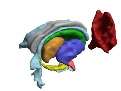 3D PDF - Sub-cortical structures plus