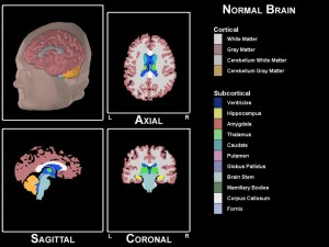 Screen grab from 3D Normal Brain program