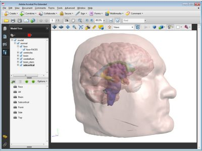 TJs Biomedical Imaging - 3D PDF - Normal Brain