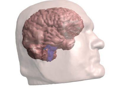 TJs Biomedical Imaging - 3D PDF - Showing Brain
