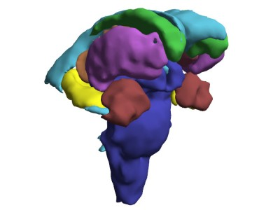 TJs Biomedical Imaging - 3D PDF - Close-up Subcortical Structures